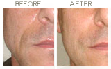 Perlane to Nasolabial Folds Beverly Hills