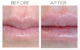 Restylane to Lips Beverly Hills