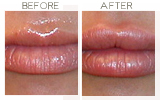 Juvederm to Lips Beverly Hills