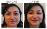 Restylane to Lower Eyelid Beverly Hills