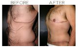 Body Contouring Beverly Hills